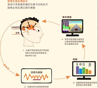 脑电生物反馈训练原理.jpg