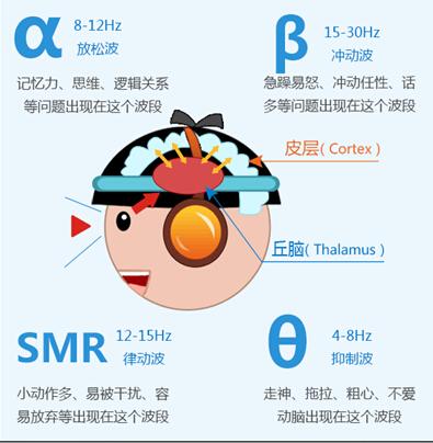 竞思教育脑电生物反馈训练.jpg